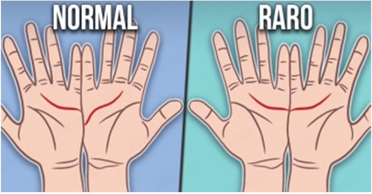 Como é as linhas das suas mãos ?